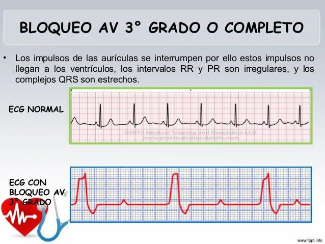  FC: < 60 latidos por minuto. Ese ritmo bajo, sale del nódulo sinusal.  Es una arritmia por FC baja.  Si el corazón se ...