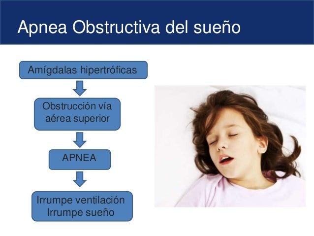 Apnea Obstructiva del sueño Amígdalas hipertróficas Obstrucción vía aérea superior Irrumpe ventilación Irrumpe sueño APNEA