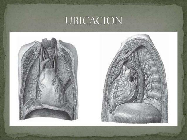 Alteraciones en la anatomia cardiaca Slide 2