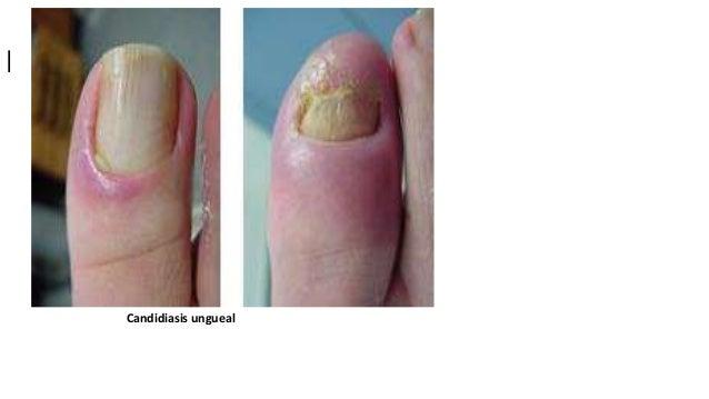 Gidrokortizonovaya el ungüento a la eccema de los pies