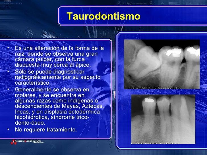 Taurodontismo <ul><li>Es una alteración de la forma de la raiz, donde se observa una gran cámara pulpar, con la furca disp...