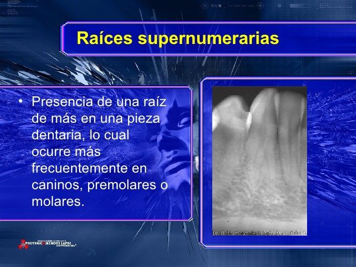 Raíces supernumerarias <ul><li>Presencia de una raíz de más en una pieza dentaria, lo cual ocurre más frecuentemente en ca...