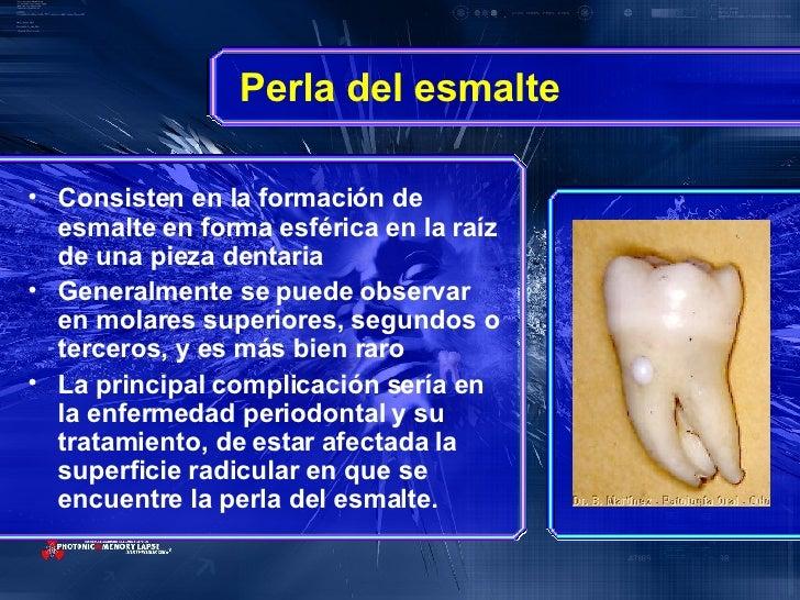 Perla del esmalte <ul><li>Consisten en la formación de esmalte en forma esférica en la raíz de una pieza dentaria  </li></...