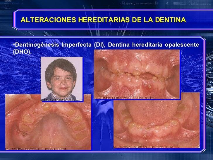 <ul><li>Dentinogénesis Imperfecta (DI), Dentina hereditaria opalescente (DHO). </li></ul>ALTERACIONES HEREDITARIAS DE LA D...