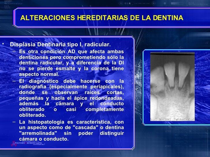 <ul><li>Displasia Dentinaria tipo I, radicular. </li></ul><ul><ul><li>Es otra condición AD que afecta ambas denticiones pe...