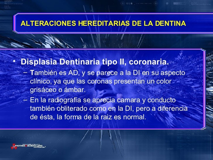 <ul><li>Displasia Dentinaria tipo II, coronaria. </li></ul><ul><ul><li>T ambién es AD, y se parece a la DI en su aspecto c...