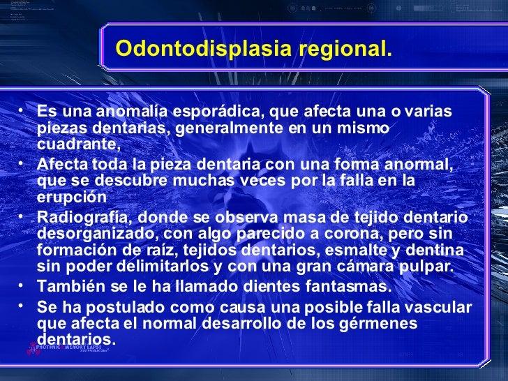 Odontodisplasia regional. <ul><li>Es una anomalía esporádica, que afecta una o varias piezas dentarias, generalmente en un...