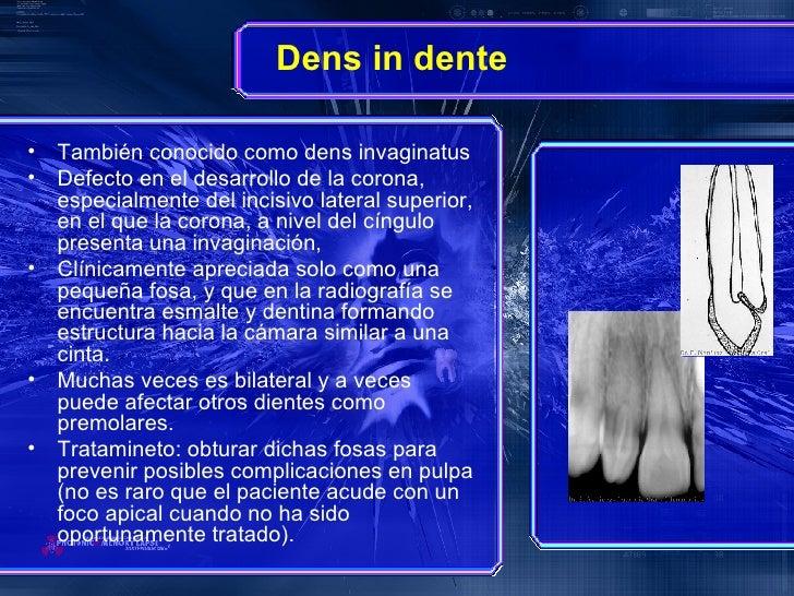 Dens in dente   <ul><li>También conocido como dens invaginatus </li></ul><ul><li>Defecto en el desarrollo de la corona, es...
