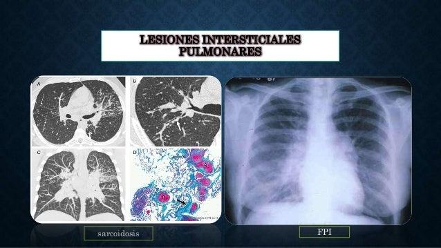 LESIONES INTERSTICIALES PULMONARES sarcoidosis FPI