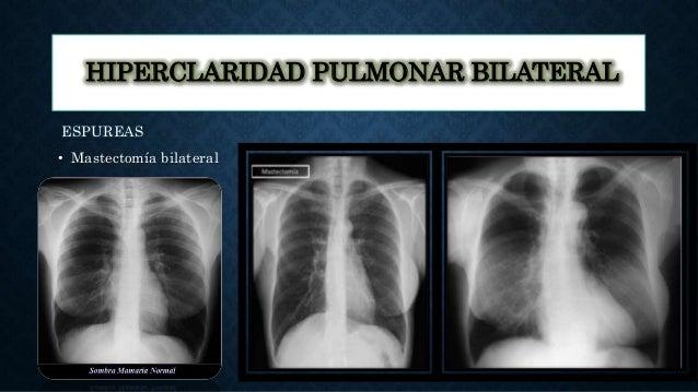 HIPERCLARIDAD PULMONAR BILATERAL ESPUREAS • Mastectomía bilateral