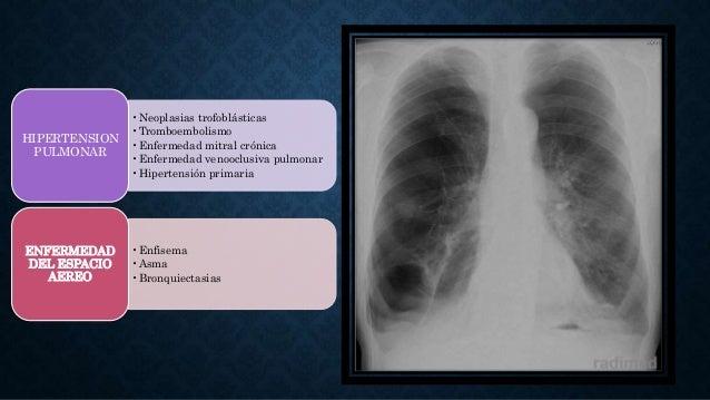•Neoplasias trofoblásticas •Tromboembolismo •Enfermedad mitral crónica •Enfermedad venooclusiva pulmonar •Hipertensión pri...