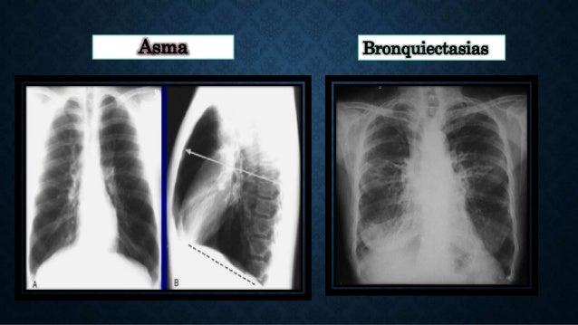 Asma Bronquiectasias