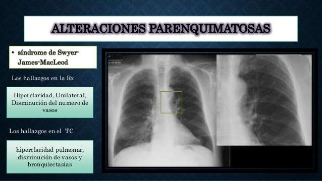 ALTERACIONES PARENQUIMATOSAS • síndrome de Swyer- James-MacLeod Los hallazgos en la Rx Los hallazgos en el TC Hiperclarida...