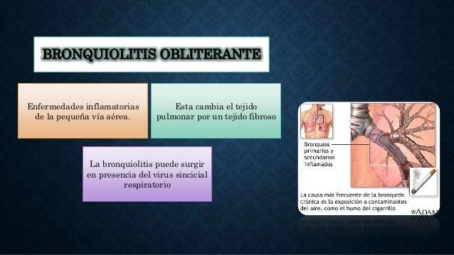 BRONQUIOLITIS OBLITERANTE • . Enfermedades inflamatorias de la pequeña vía aérea. La bronquiolitis puede surgir en presenc...