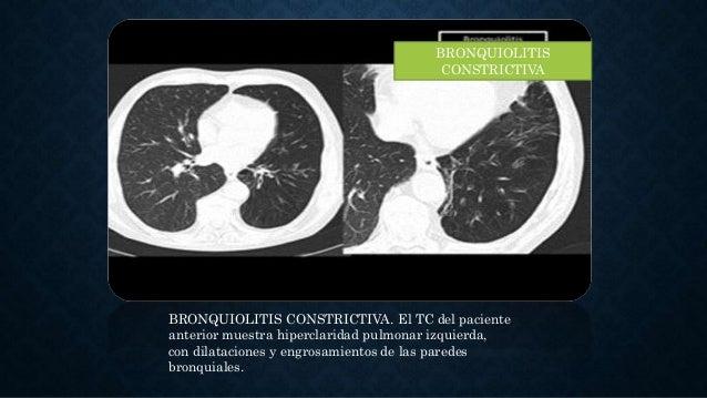 BRONQUIOLITIS CONSTRICTIVA BRONQUIOLITIS CONSTRICTIVA. El TC del paciente anterior muestra hiperclaridad pulmonar izquierd...