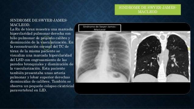 SINDROME DE SWYER-JAMES- MACLEOD SINDROME DE SWYER-JAMES- MACLEOD. La Rx de tórax muestra una marcada hiperclaridad pulmon...