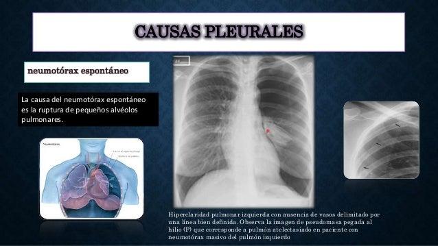 CAUSAS PLEURALES neumotórax espontáneo La causa del neumotórax espontáneo es la ruptura de pequeños alvéolos pulmonares. H...