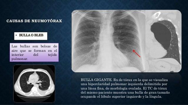CAUSAS DE NEUMOTÓRAX • BULLA O BLEB Las bullas son bolsas de aire que se forman en el interior del tejido pulmonar. BULLA ...