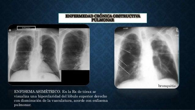 ENFERMEDAD CRÓNICA OBSTRUCTIVA PULMONAR bronquitis ENFISEMA ASIMÉTRICO. En la Rx de tórax se visualiza una hiperclaridad d...