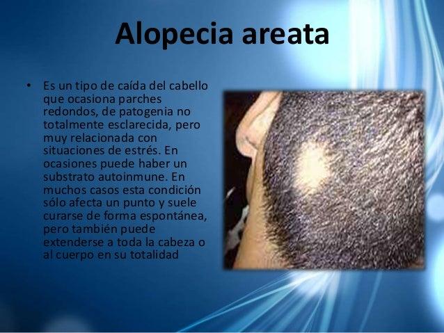 El tratamiento del hongo en los cabellos