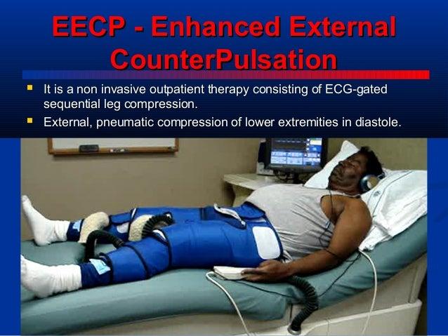 Image result for enhanced external counterpulsation (eecp)