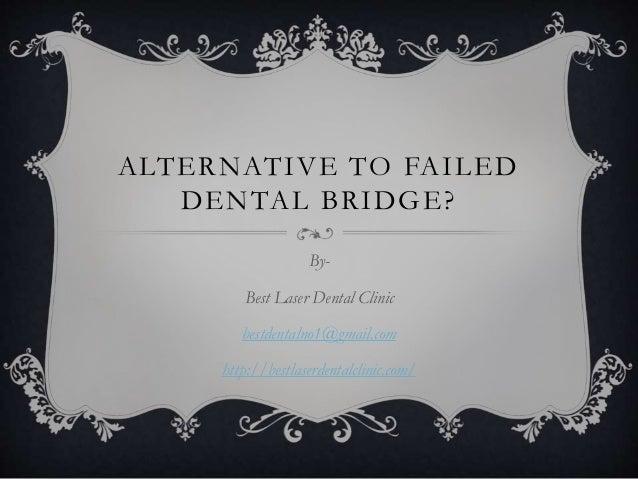 ALTERNATIVE TO FAILED DENTAL BRIDGE? By- Best Laser Dental Clinic bestdentalno1@gmail.com http://bestlaserdentalclinic.com/