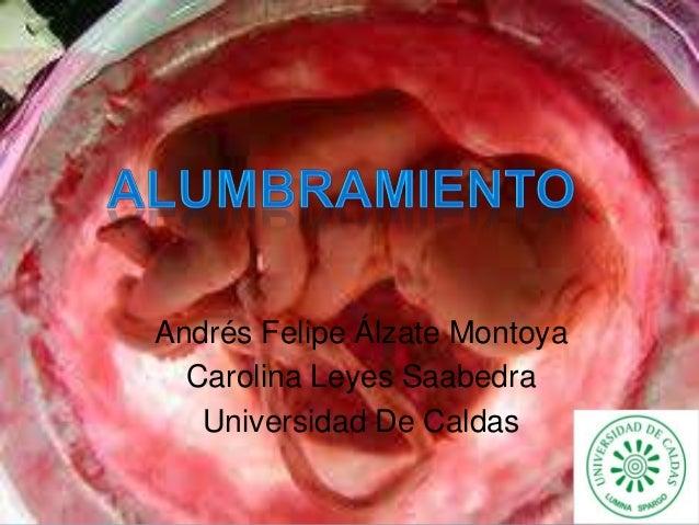 Andrés Felipe Álzate Montoya Carolina Leyes Saabedra Universidad De Caldas