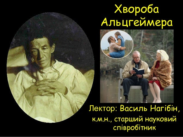 Хвороба Альцгеймера Лектор: Василь Нагібін, к.м.н., старший науковий співробітник
