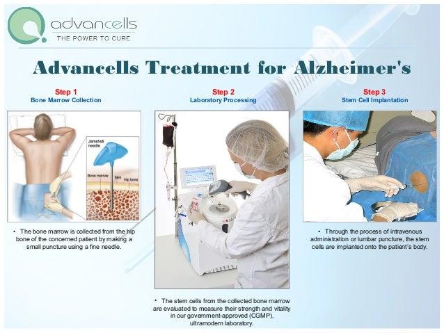 Advancells Treatment for Alzheimer'sNAME CURRENT TREATMENT PROCEDURE ADVANTAGES WITH STEM CELL TREATMENT Alzheimer's Medic...