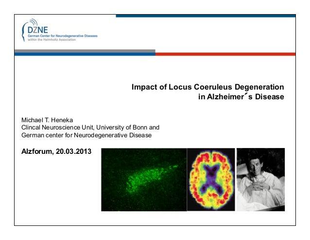Impact of Locus Coeruleus Degeneration                                                        in Alzheimer´s DiseaseMichae...