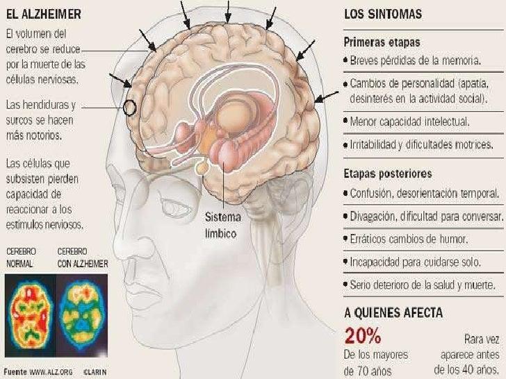 https://image.slidesharecdn.com/alzheimer-100902163518-phpapp01/95/alzheimer-y-esquizofrenia-3-728.jpg?cb=1283445385