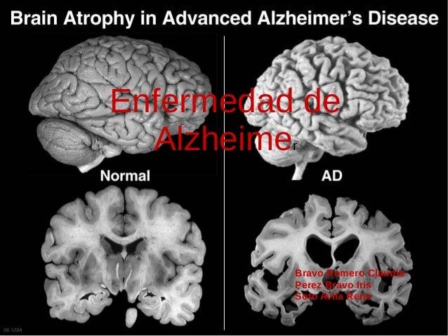 Enfermedad de Alzheimer Bravo Romero Claudia Perez Bravo Iris Soto Avila Rene