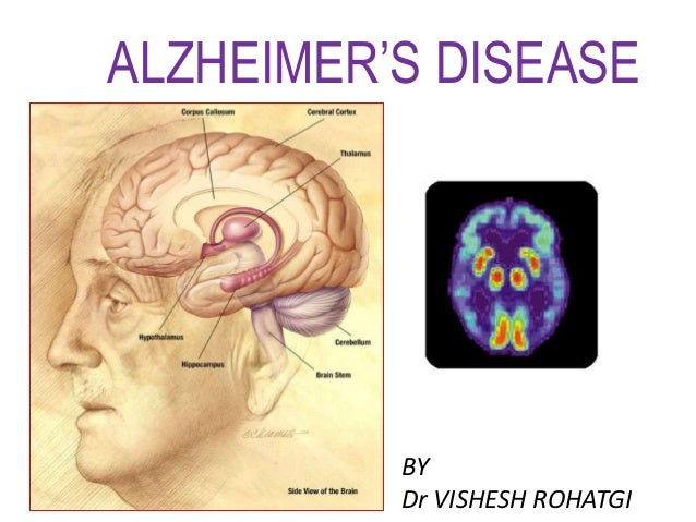 ALZHEIMER'S DISEASE BY Dr VISHESH ROHATGI
