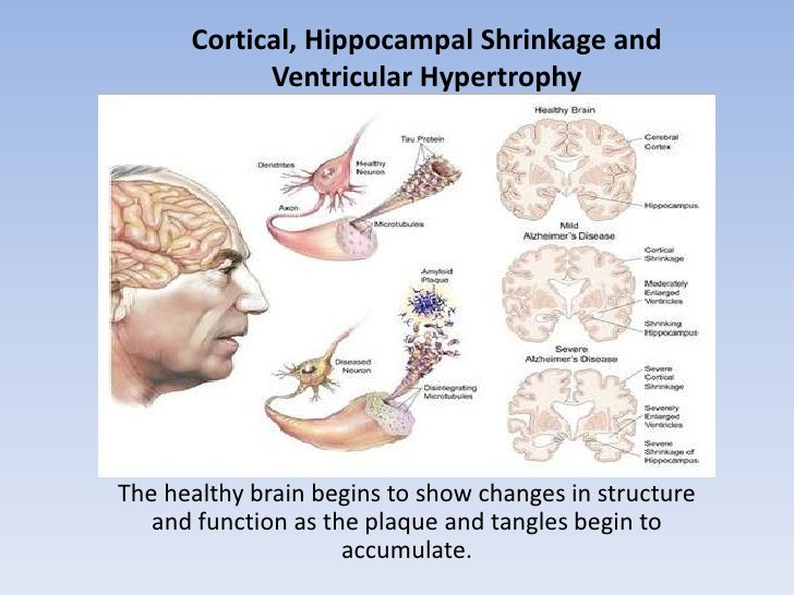 Cortical, Hippocampal Shrinkage and Ventricular Hypertrophy <br />The healthy brain begins to show changes in structure an...