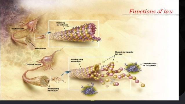 Beta Amyloid Plaques >> Biochemistry of Alzheimers disease