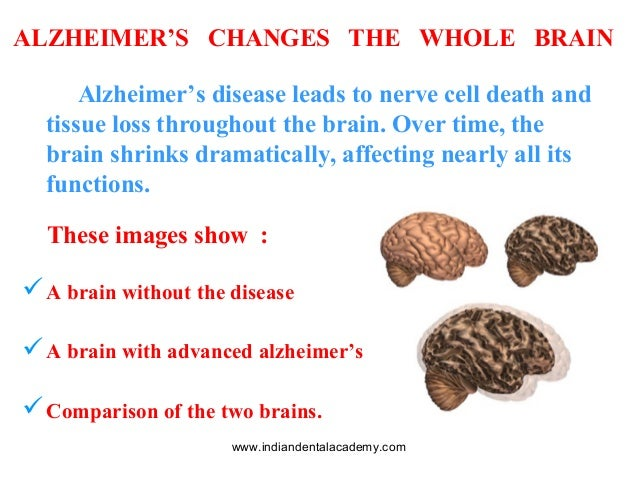 the brain and how alzehimers affects its normal function Summit died june 28 from early-onset alzheimer's that severely affects daily yet the onset of the disease robs them of brain function at such.