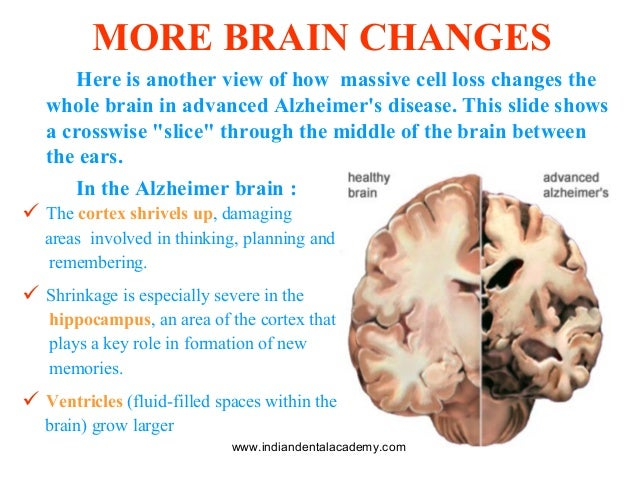 an analysis of the alzheimers disease The objective of this report is to provide a detailed analysis of alzheimer's disease (ad) and the pharmaceutical drugs and medicinal plants used to treat and prevent it.