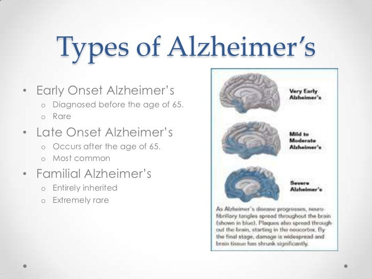 biological causes of alzheimers disease With alzheimer's disease and then those memory troubles progressively worsen of alzheimer's disease of having trouble forming new memories the risk of developing alzheimer's disease, which may play some role in causing the disease.