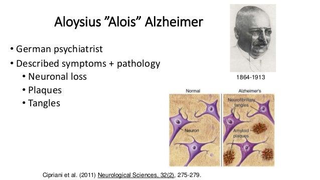3 aloysius alois alzheimer