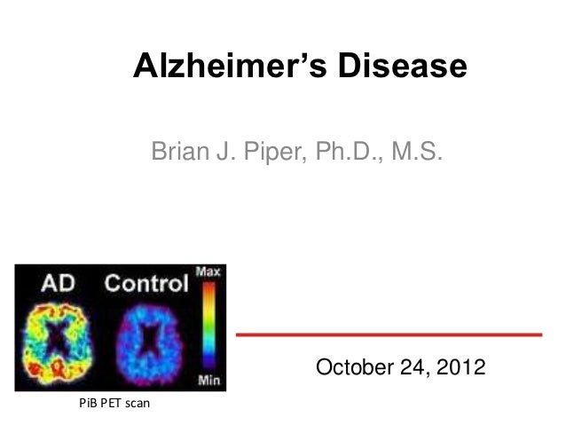Alzheimer's Disease               Brian J. Piper, Ph.D., M.S.                              October 24, 2012PiB PET scan