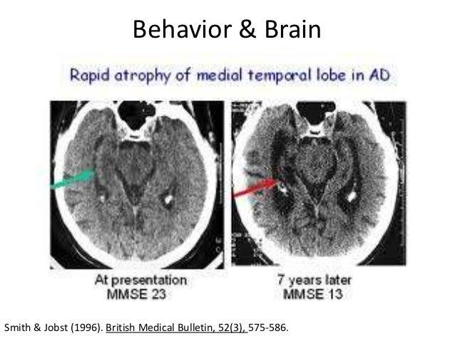 Pathophysiology: Alzheimer's Disease