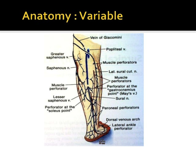 Ssv Anatomy Pathophysiology