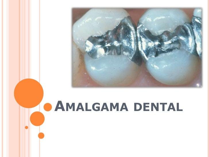 Amalgama dental<br />