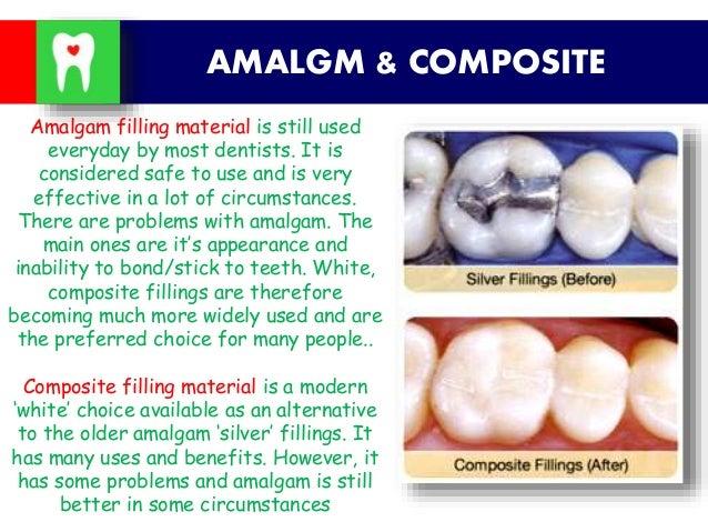 Amalgam &composite
