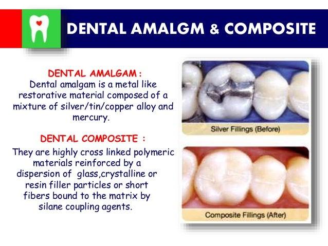 amalgam vs composite essay writer