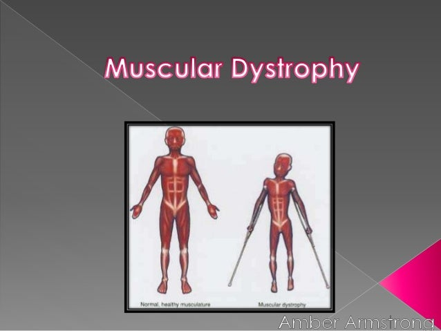  Entirely genetic  Caused by defects in a persons gene  Some forms occur due to an absence of muscle proteins or smalle...