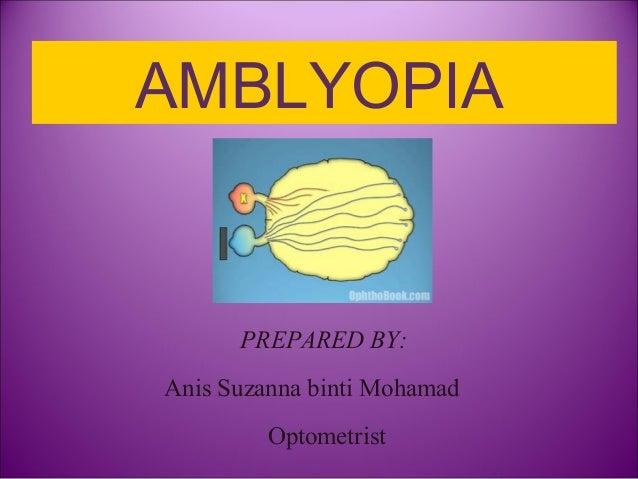 AMBLYOPIA PREPARED BY: Anis Suzanna binti Mohamad Optometrist