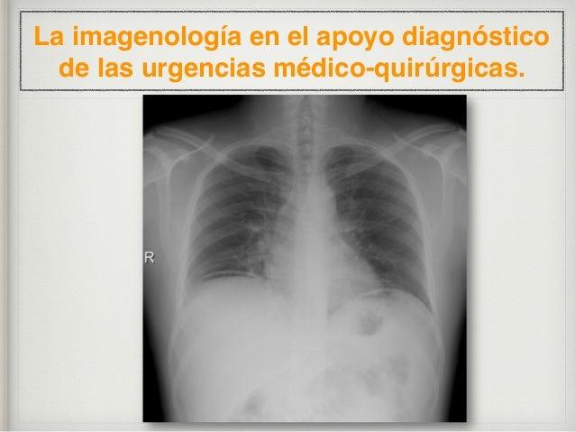 La imagenología en el apoyo diagnóstico de las urgencias médico-quirúrgicas. Masculino, 28 años de edad, con 24 horas de e...