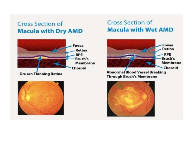 stem cell treatment in age related macular degeneration amd New stem cell treatment may help reverse age-related sight  on the results of pioneering operations in 2 patients with age-related macular degeneration .