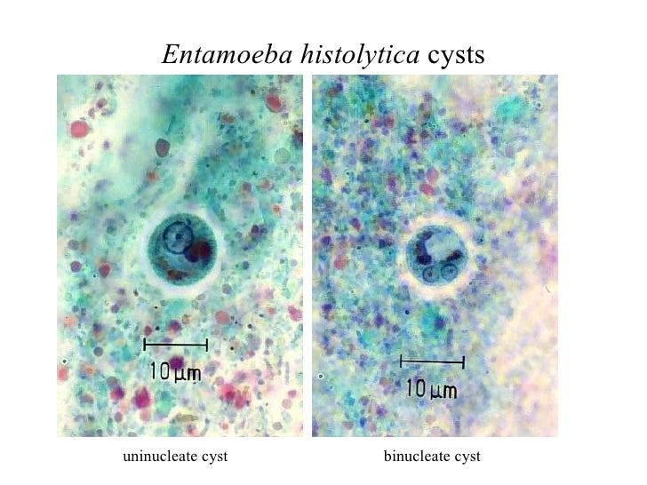 entamoeba histolytica slide - photo #23